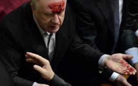 احتقان ودماء في البرلمان الأوكراني بسبب الموازنة وقوانين مثيرة للجدل