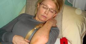 الكدمات على جسم رئيسة وزراء أوكرانيا السابقة تيموشينكو مجهولة السبب