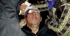 إصابة وزير الداخلية الأوكراني السابق إثر اشتباكات بين الشرطة ومحتجين