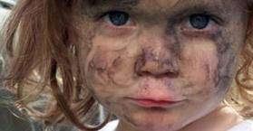 النظافة لا تق الأطفال من الإصابة بالأمراض وقلتها تحصن مناعتهم